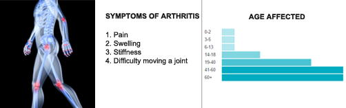 Arthritis-Spine-Problem